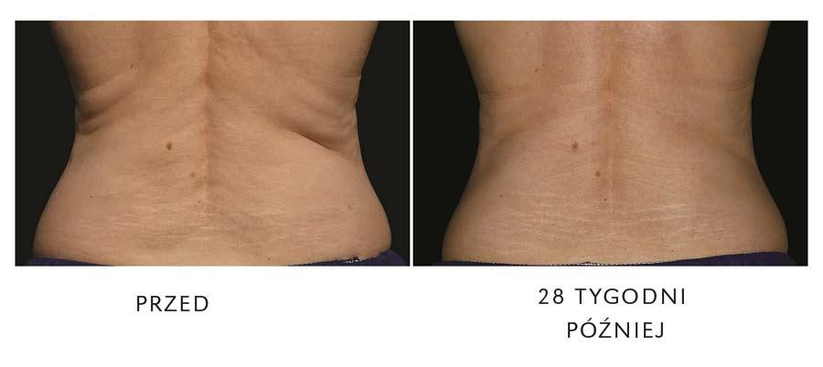 redukcja tłuszczo na plecach