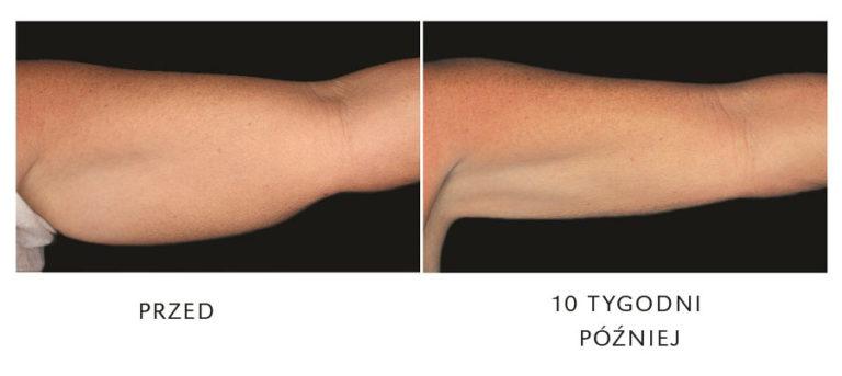 redukcja tłuszczo zeltiq na ramieniu