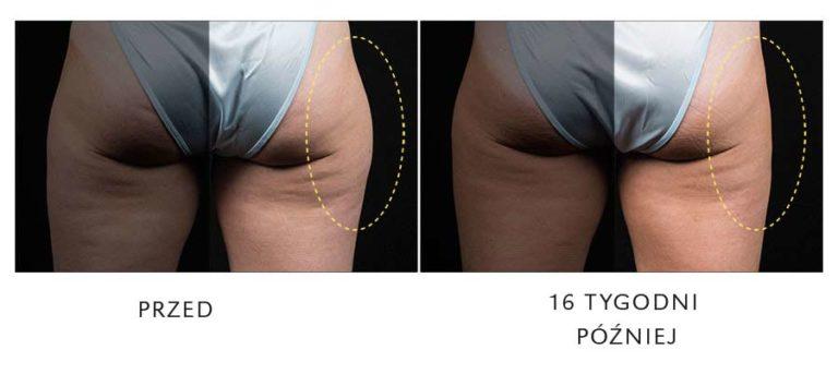 redukcja tłuszczo na udach